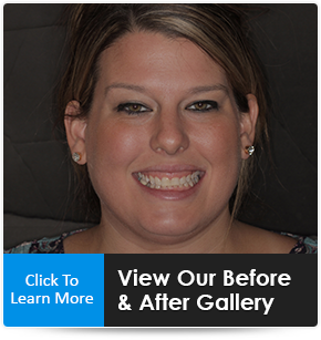 before and after dental care photos