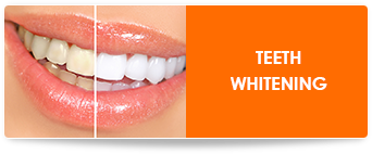 professional teeth whitening in chicago il