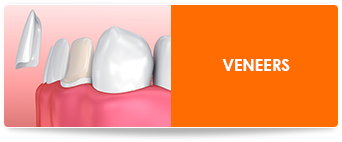 veneers in chicago il
